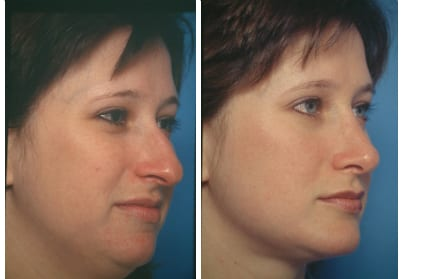 Before & After - Facial Liposuction in San Francisco CA